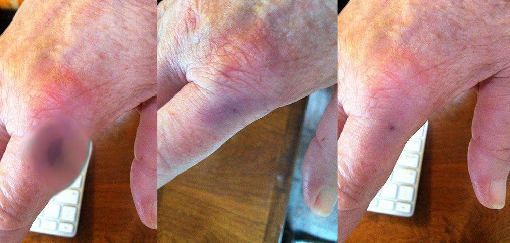 SLAMMED-HAND